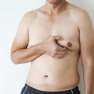 How to Tell if You Have Gynecomastia or Just Fat?